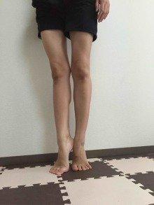 足痩せ・トレーニング(東京)