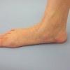 足裏・足底のコンディショニング